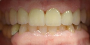 Eight Upper Porcelain Crowns and Veneers Completed by Dr Nhon Huynh Dental Implant Specialist in Ancaster Ontario
