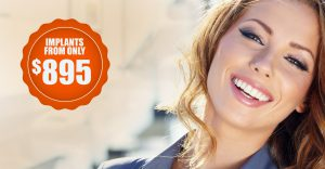 Dental Implants from $895 in Ancaster