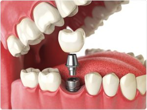 Dental Implants and Teeth Implants Starting at $1350 in the Greater Toronto Area